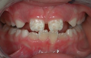 Dental issues with Celiac Disease