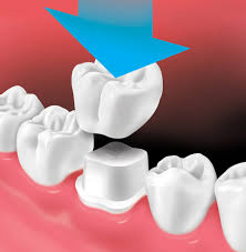 Dental crowns: Procedure, time and cost explained