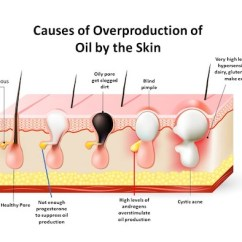 Hormonal Acne Diagram 2 Way Wiring For A Light Switch Treatment Natural Solutions In Sydney Causes Of