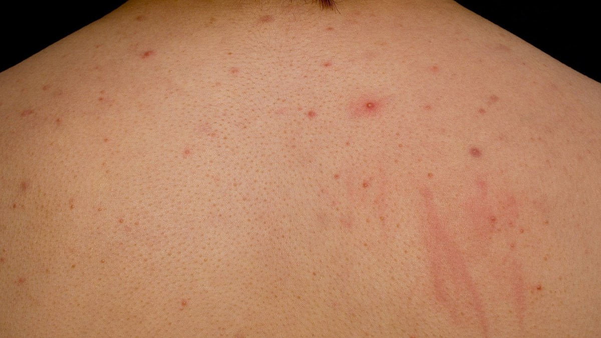 What is Cystic Back Acne?