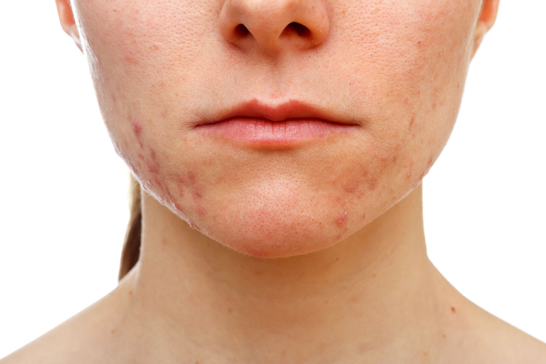 Acne Vulgaris Causes And Cure
