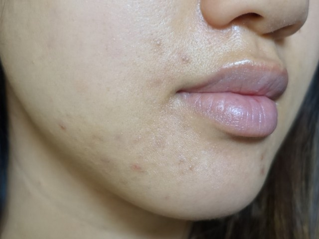 girl with acne on jawline
