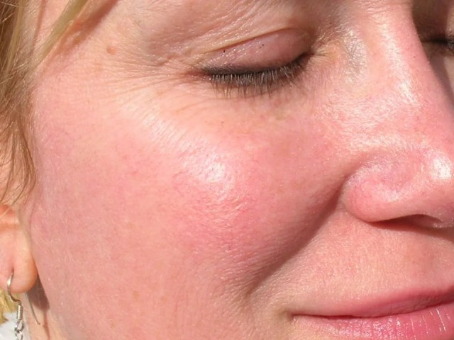 woman with rosacea on her face