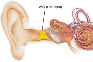 ear-wax-location-300x200