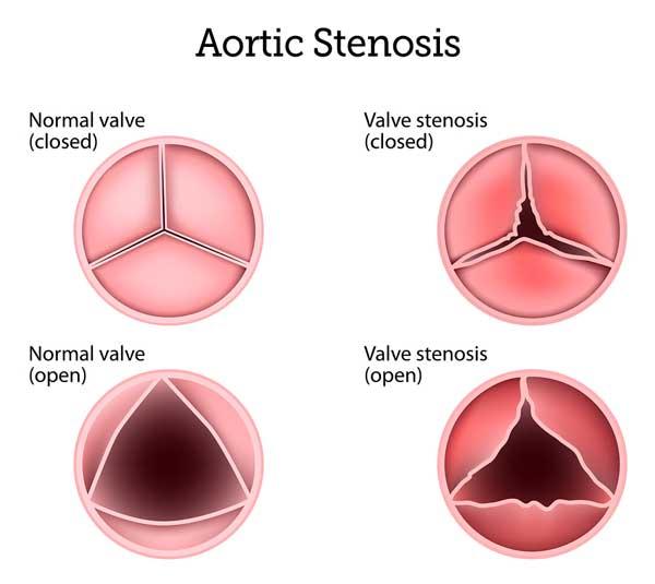 aortic stenosis symptoms causes