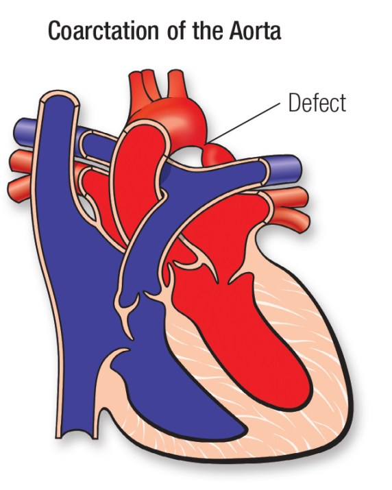 Coarctation of the Aorta (CoA) | American Heart Association