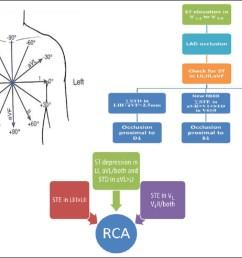 figure 1 algorithm for culprit artery prediction [ 1372 x 939 Pixel ]