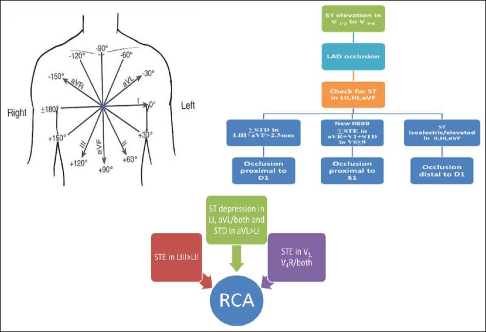 medium resolution of figure 1 algorithm for culprit artery prediction