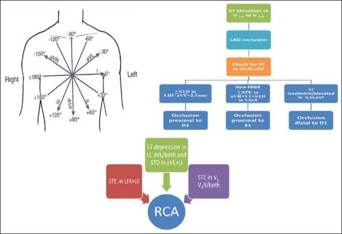small resolution of figure 1 algorithm for culprit artery prediction