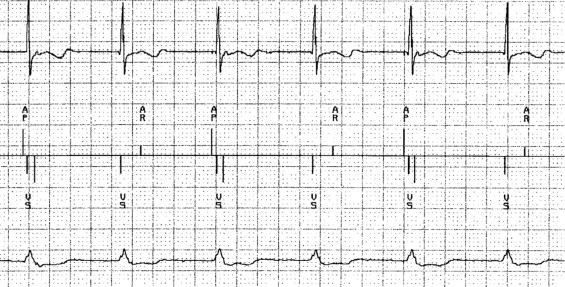 Ventricular safety pacing, ventricular sense response, and