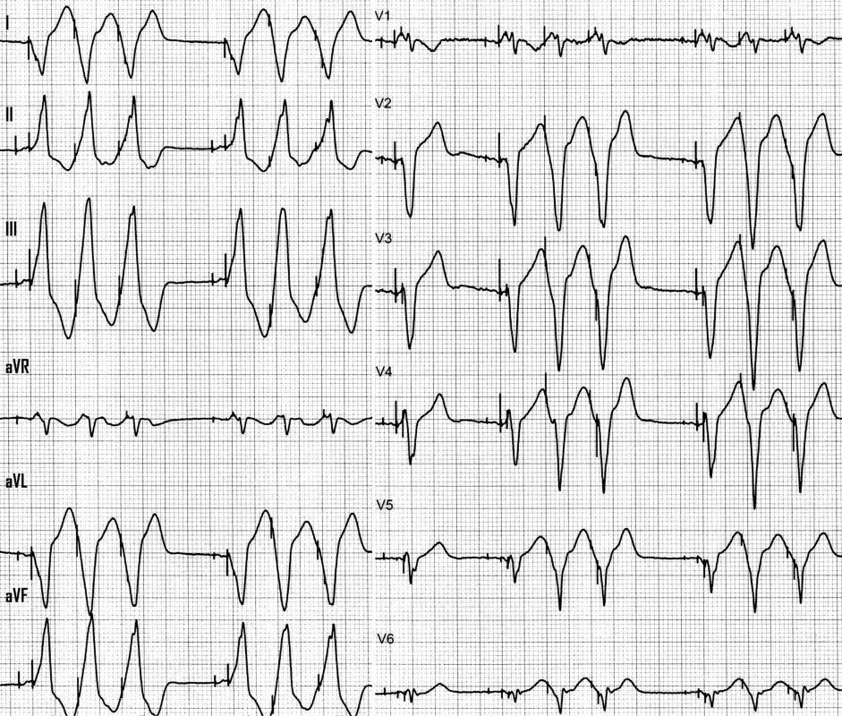 Nonsustained pacemaker-mediated tachycardia during