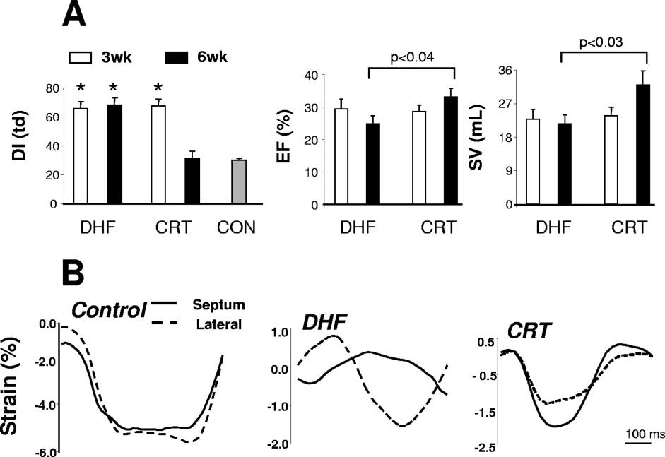 Pathobiology of cardiac dyssynchrony and resynchronization