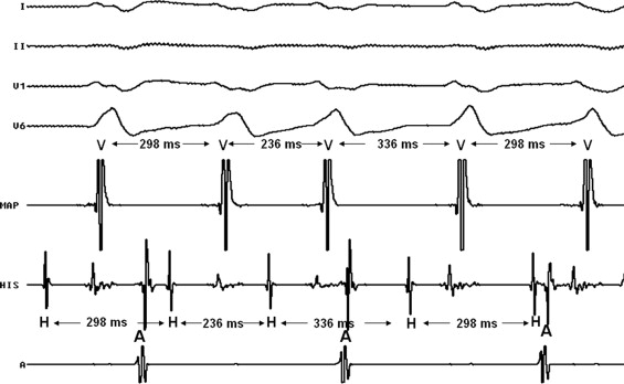 Catheter ablation of bundle branch reentrant ventricular