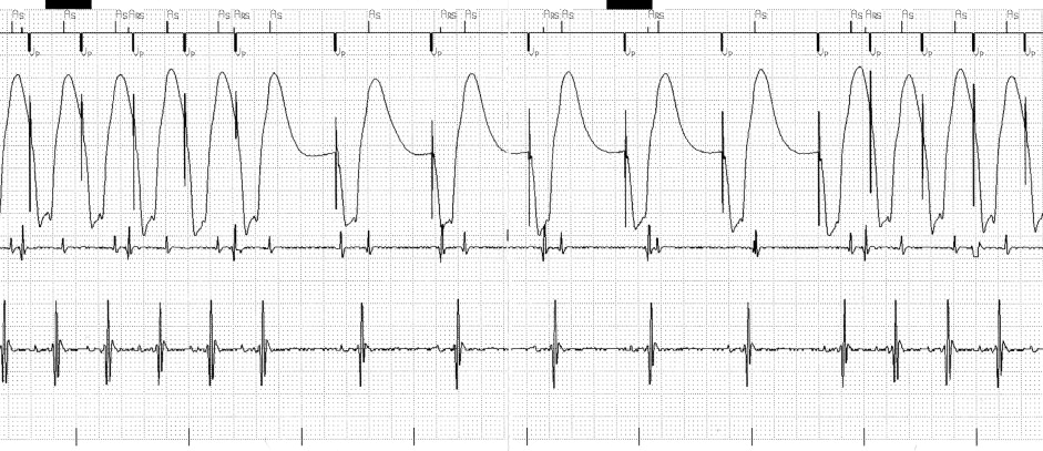 Repetitive pacemaker-mediated tachycardia occurring only
