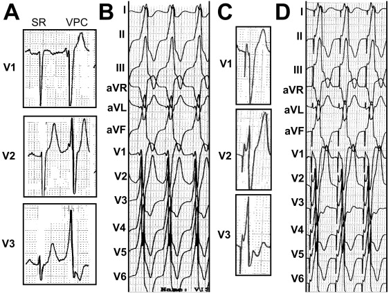"""""""Typical"""" electrocardiographic left ventricular outflow"""