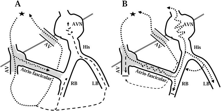 Atrioventricular and atriofascicular accessory pathways