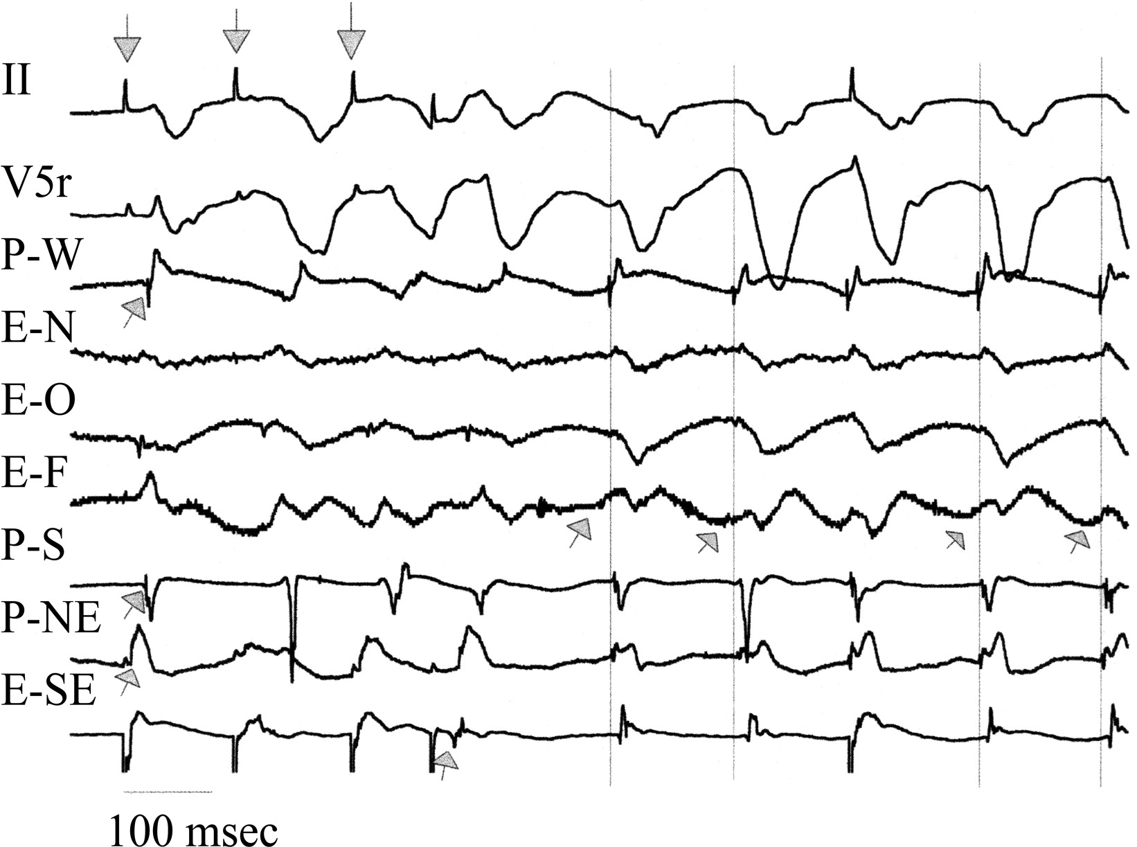 Lovastatin Specifically Prevents Focal Ischemic Ventricular Tachycardia Due To Triggered
