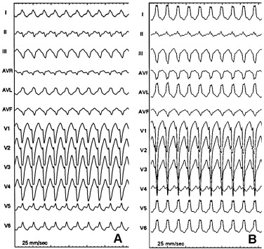 Electrocardiogram during tachycardia in patients with
