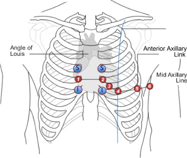 Effect of electrocardiographic lead placement on