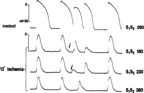 Postrepolarization refractoriness in acute ischemia and