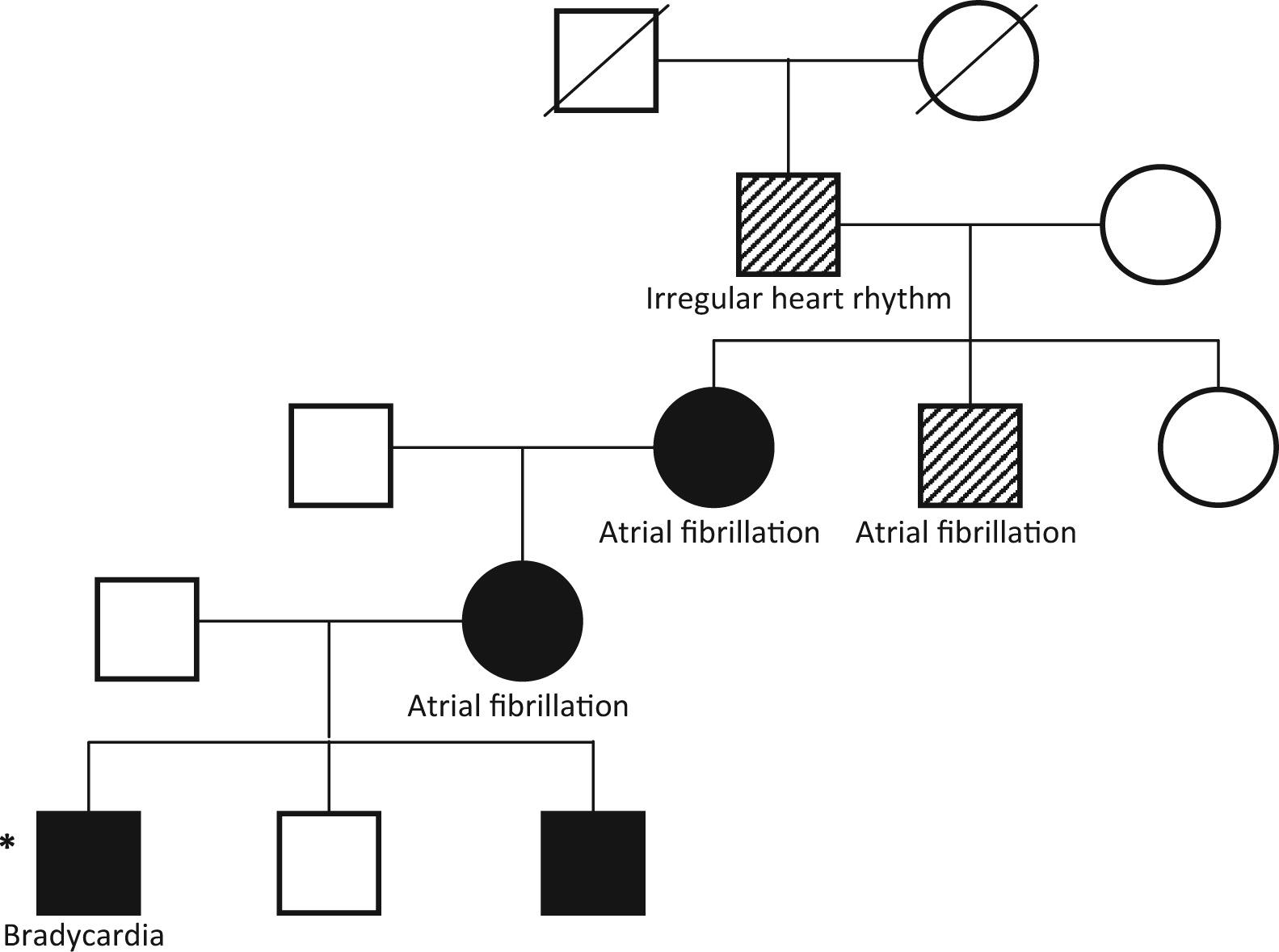 Long Qt Genetics Manifesting As Atrial Fibrillation