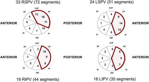 Corticosteroid use during pulmonary vein isolation is