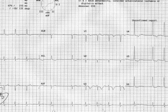 Bidirectional ventricular tachycardia associated with