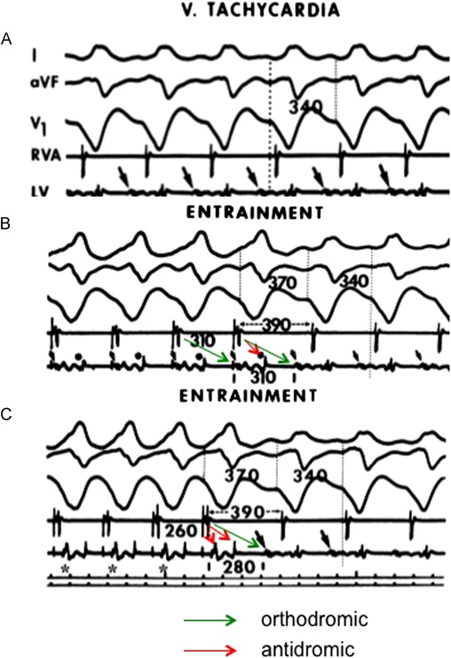Resetting and entrainment of reentrant ventricular