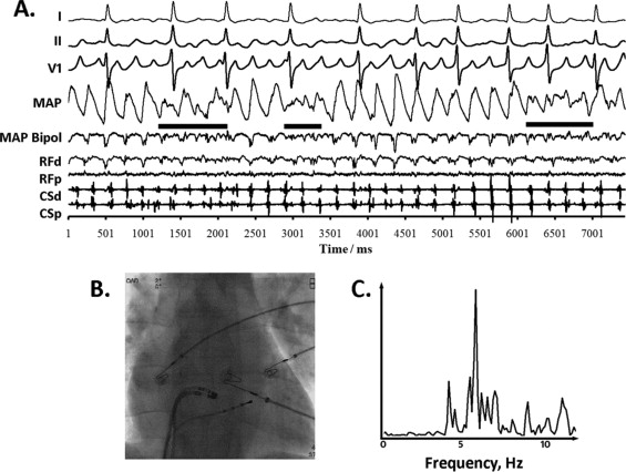 Classifying fractionated electrograms in human atrial