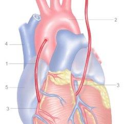 Diagram Of A Heart Bypass Graft Workhorse Chassis Wiring Coronary Surgery | Hunaid Vohra Mrcs, Bristol