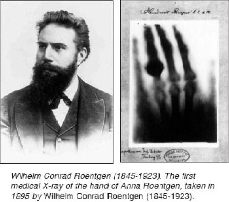 Resultado de imagen para wilhelm roentgen x ray wife hand
