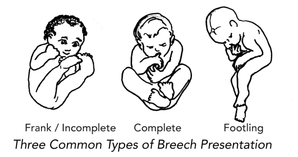 breech positions