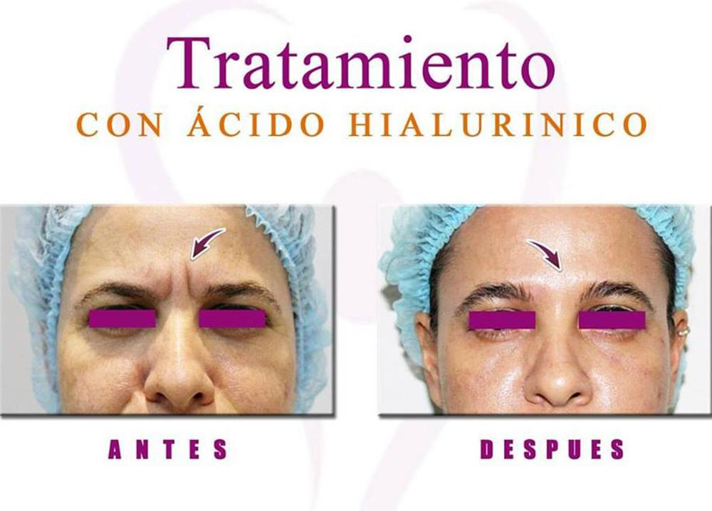 Rellenos Faciales (Ácido Hialurónico)