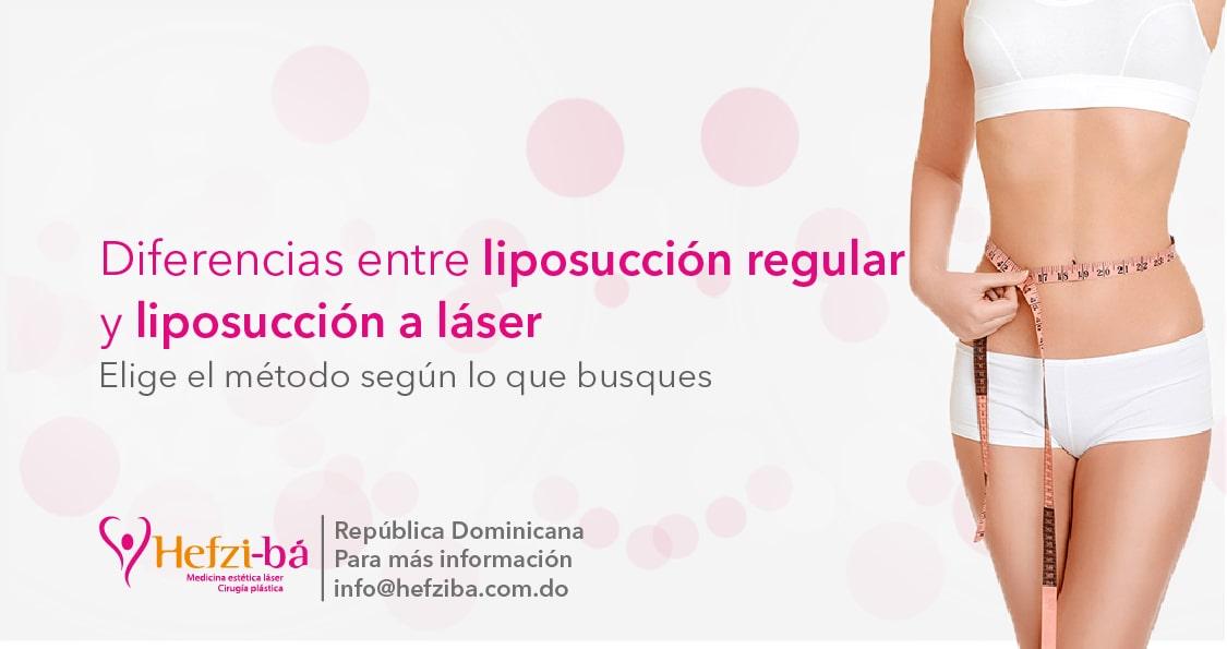 Diferencia entre liposucción regular y laserlipólisis