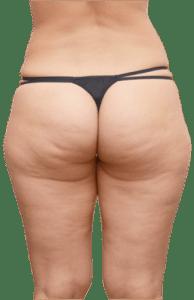 Mujer- con -celulitis -como eliminar la celulits