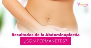 Resultados abdominoplastia