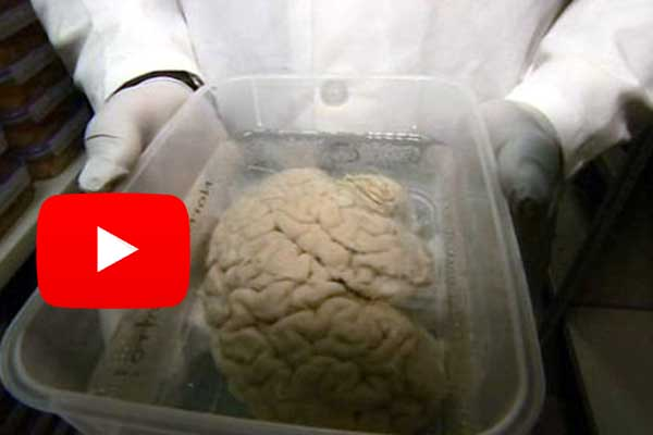 Scientific research purpose scientists appeal donate brain after death for research.