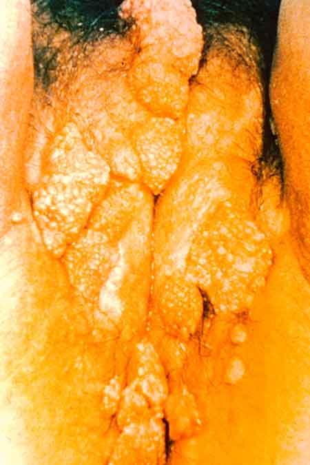Genital Warts, Vulva