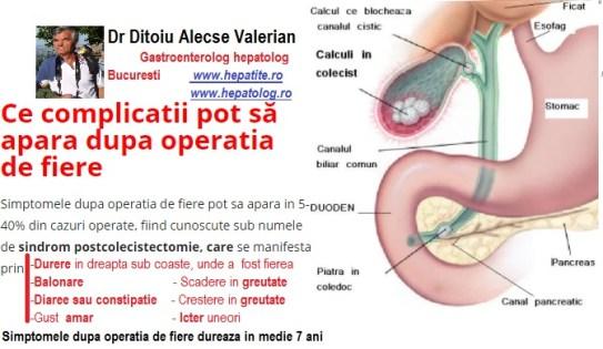 4 complicații care pot apărea după operația de cataractă