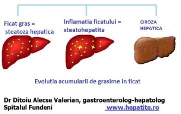 steatoza-hepatica