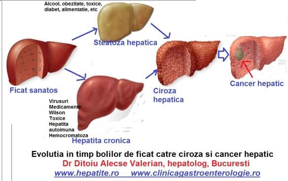 cum de a vindeca varicoza de ficat)