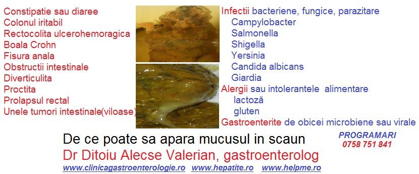 Parazitozele intestinale: giardioza si ascaridioza | coronatravel.ro