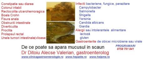 mucus in scaun cauze