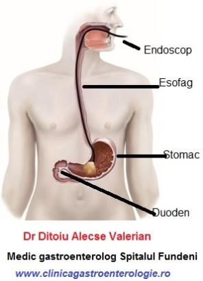 unde se afla stomacul