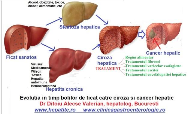 ciroza-tratament