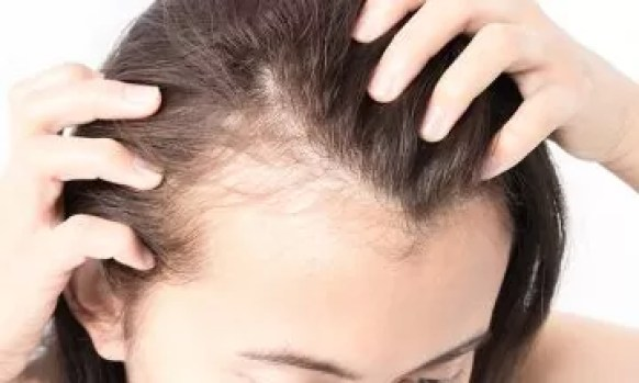 Does dengue fever cause hair loss? | Dr Batra's™