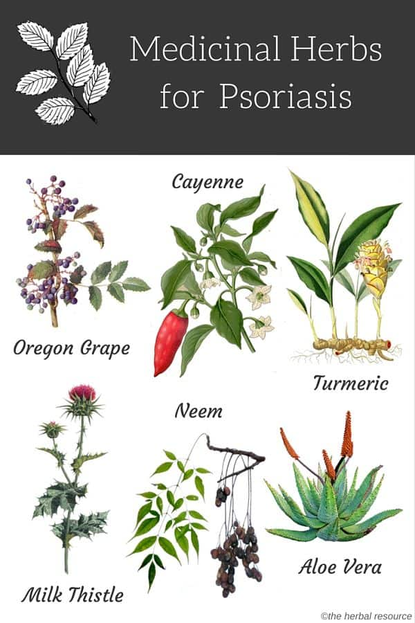 Medicinal Herbs For Psoriasis Treatment And Relief
