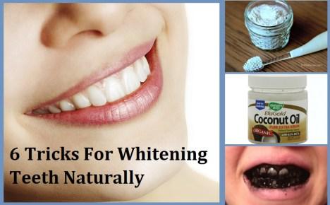 Kebiasaan Buruk yang Dapat Merusak Gigi- Global Estetik Dental Care