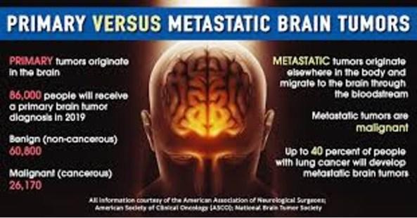 diagram comparing primary and metastatic tumors