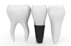 Implant-supported crown